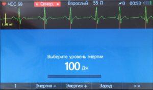 синхронизированная кардиоверсия ДА-Н-02