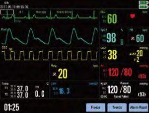 Дефибриллятор-монитор Beneheart D6 мониторинг