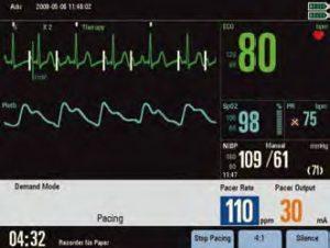 Дефибриллятор-монитор Beneheart D6 кардиостимуляция