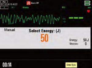 Дефибриллятор-монитор Beneheart D6 детский режим
