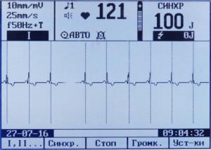 ДКИ-Н-10 кардиоверсия