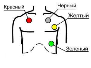ДКИ-Н-10 схема наложения экг электродов